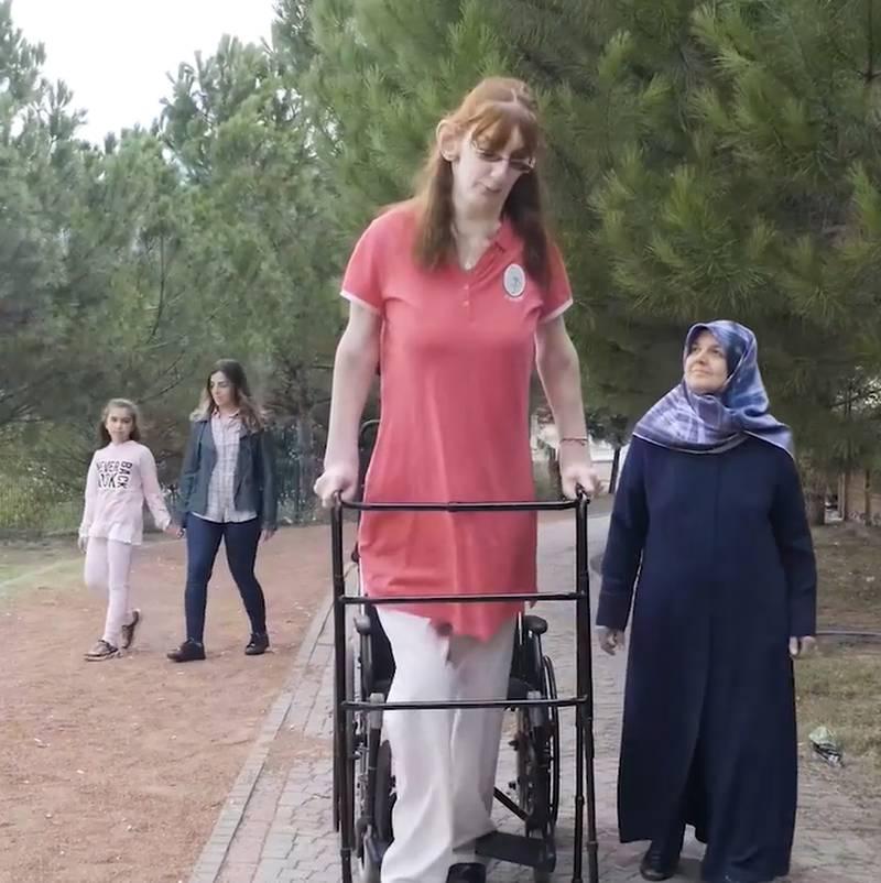 Rumeysa Gelgi é a mulher mais alta do mundo
